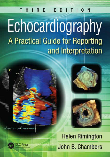 https://www.cdha.info/tai-lieu/echocardiography-a-practical-guide-for-reporting-and-interpretation-2015/