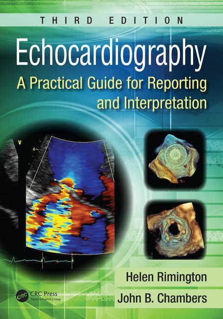 https://www.cdha.info/tai-lieu/echocardiography-a-practical-guide-for-reporting-and-interpretation-2015/