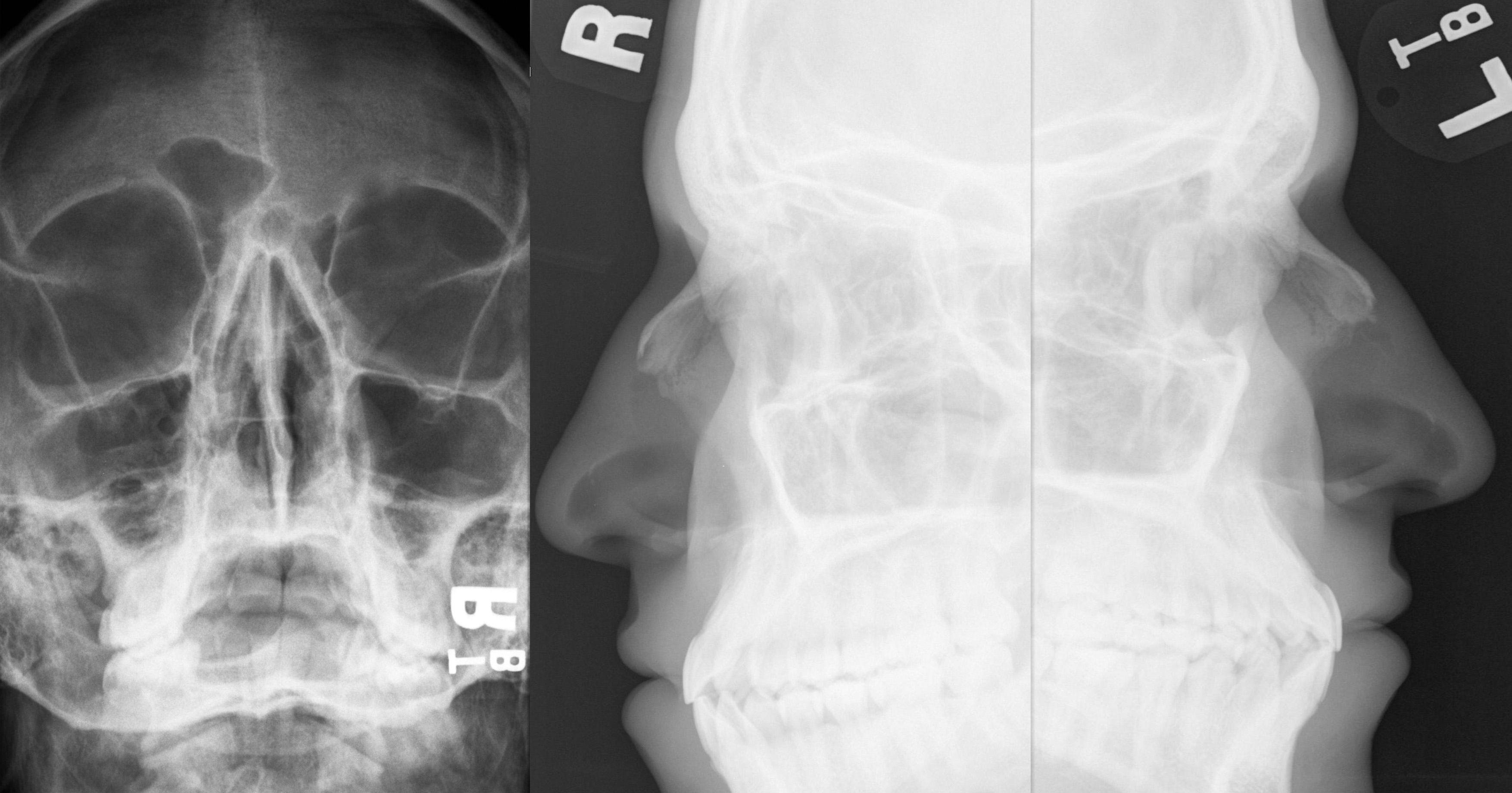 Gãy xương chính mũi | RADIOLOGY – CHẨN ĐOÁN HÌNH ẢNH